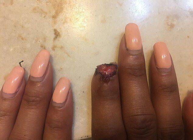 американке  пума откусила палец